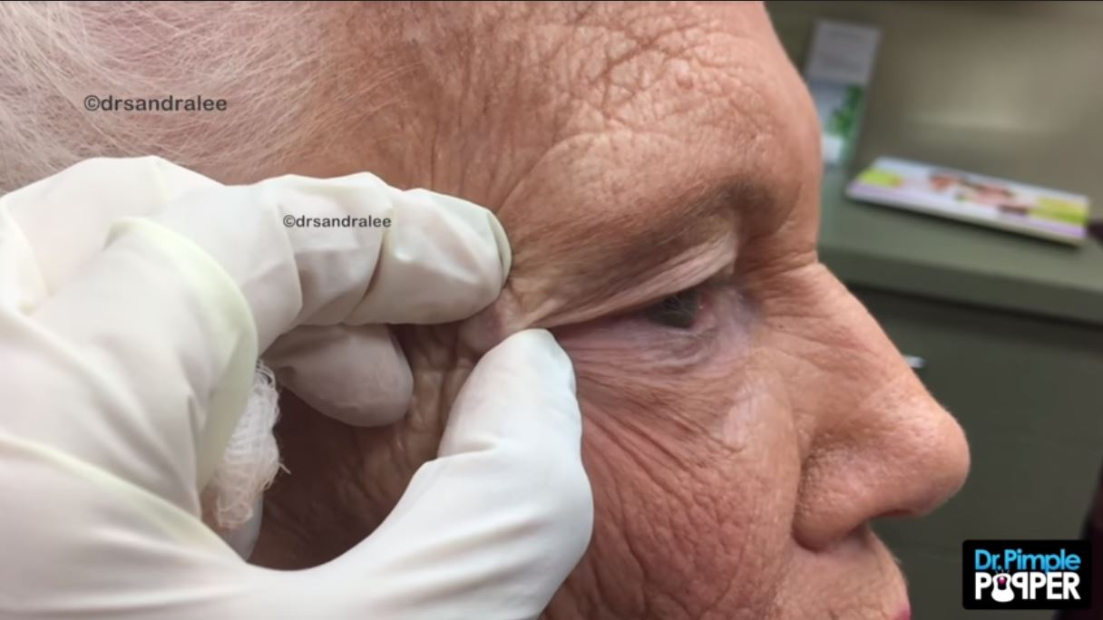 Dr Pimple Popper Squeezes Out A Huge Dilated Pore Out Of